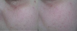 Swatch on cheek - before (left) after (right)
